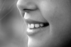 הלבנת שיניים מחיר